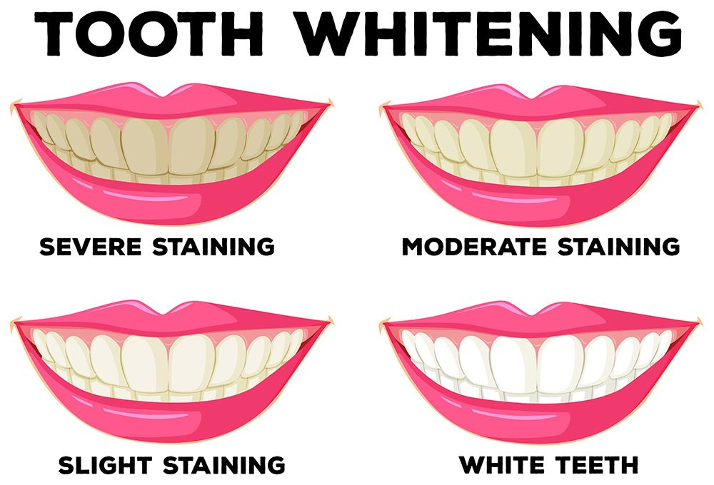 teeth staining