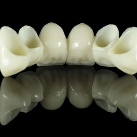 dental bridge on a black background