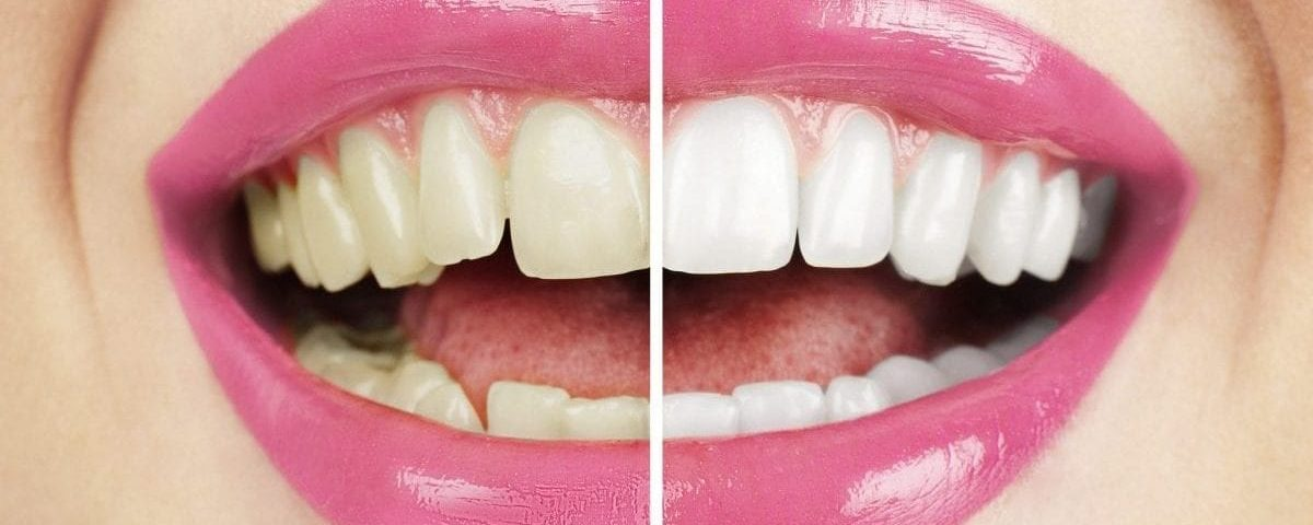 Professional teeth whitening before and after