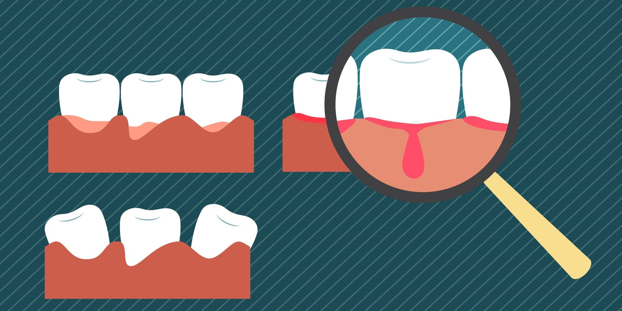 infographic of bleeding gums