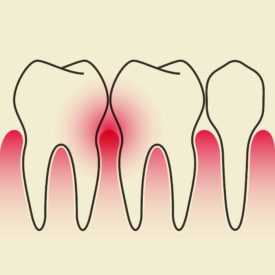 gums that are inflamed