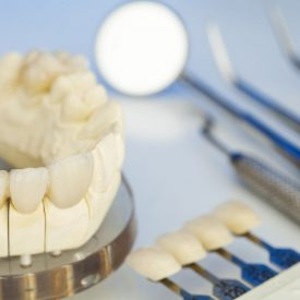 dental crown and tools