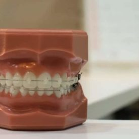 Dentist tips for cleaning braces