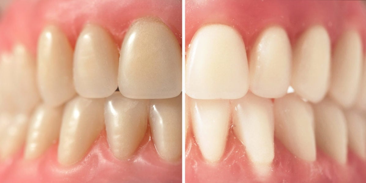 3 Reasons To Get A Home Teeth Whitening Kit From A Dentist