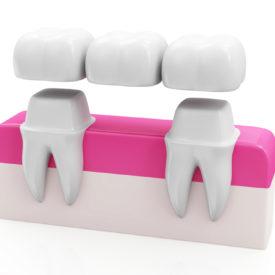 Diagram of a Dental Tooth Bridge