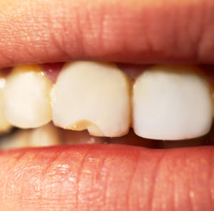 Chipped Tooth Repair Dentist In Greensboro, NC